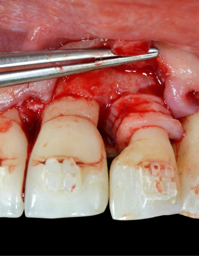 SwissPerio Live Surgery